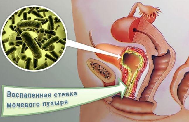 Геморрагический цистит у женщин - симптомы и лечение причины