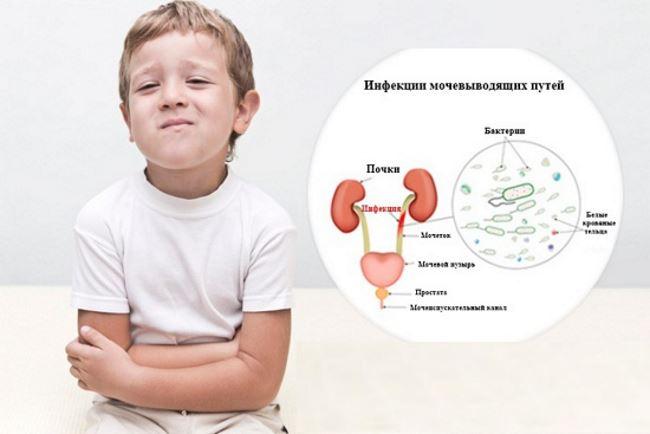 Местное лечение цистита у детей