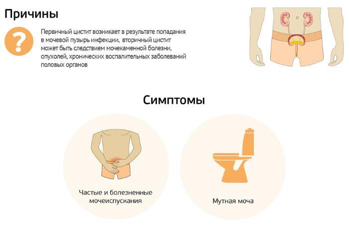 Кои са най-често използваните лекарства при цистит