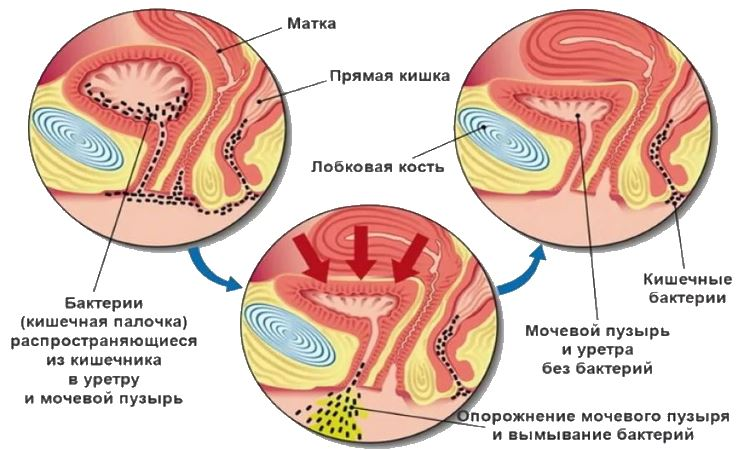 Терапия при цистите у женщин 2