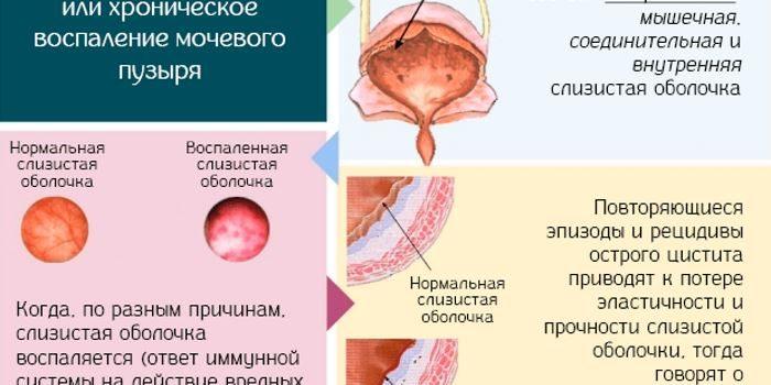 Лечение Диета При Остром Цистите.