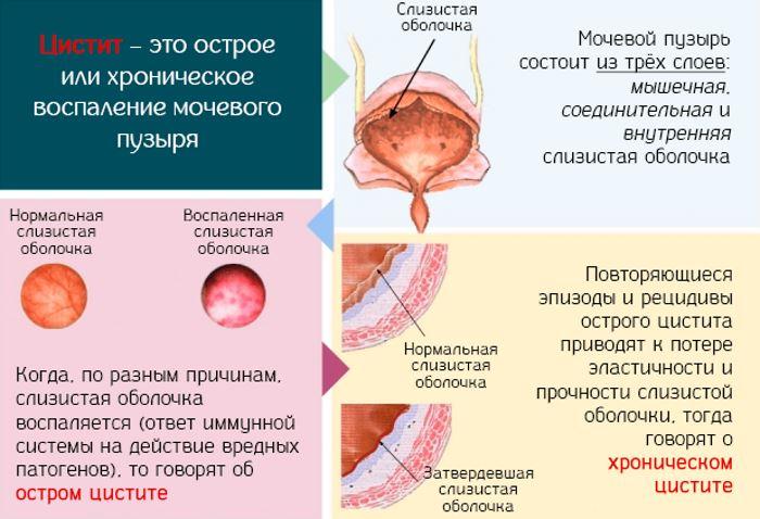 Боли при хроническом цистите у мужчин