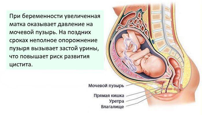 Признаки цистита при беременности на ранних сроках
