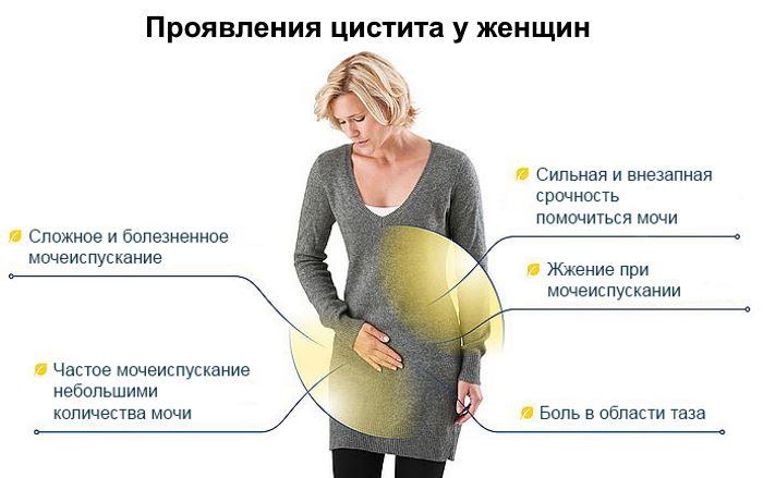 Как проявляется цистит у женщин