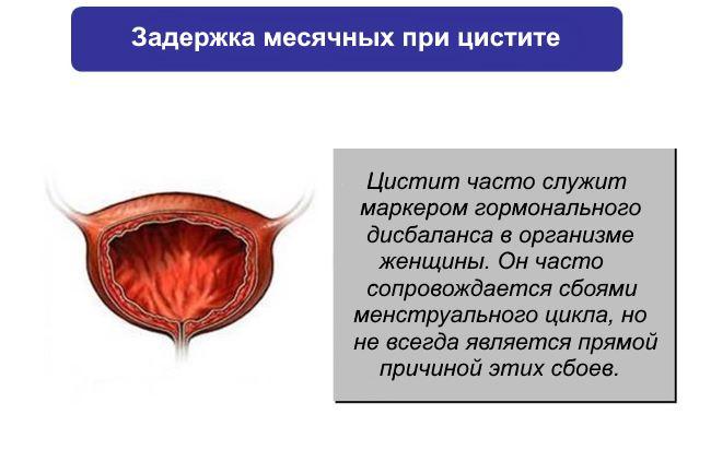 Цистит и задержка менструации thumbnail