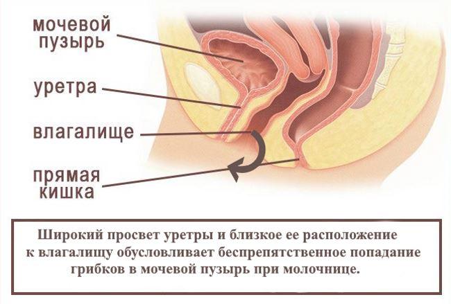 Молочница и цистит одновременно лечение препараты