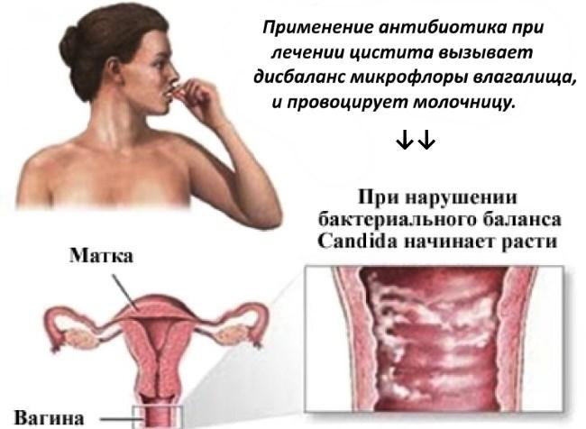 Цистит на ранних сроках беременности